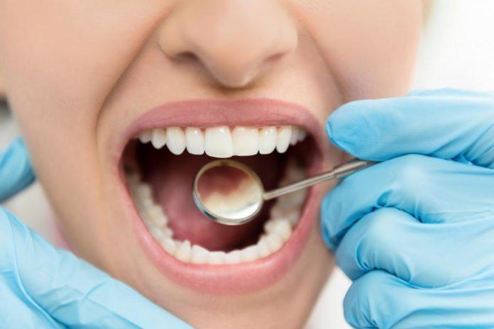 dente cariato